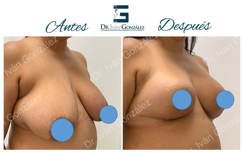 cirugia de mamas