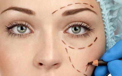 Cirugía de los párpados