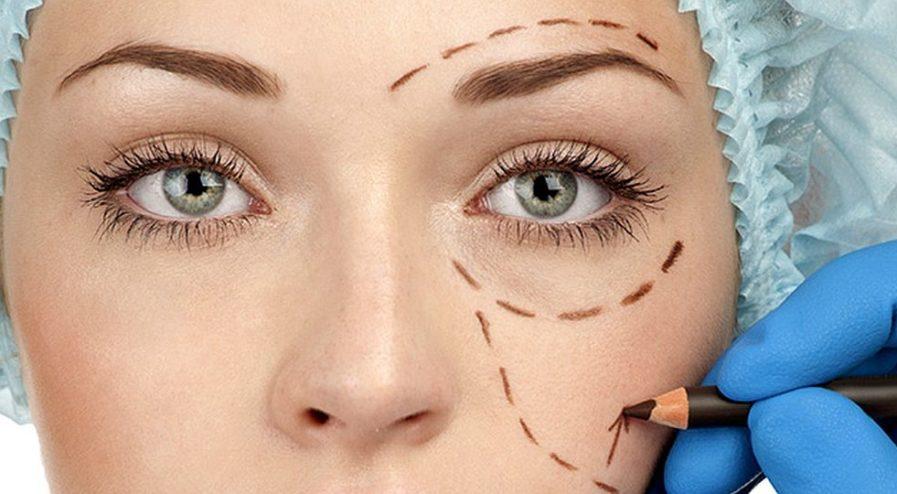 cirugía de parpados